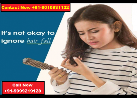 Hair loss treatment in Delhi : +91-8010931122