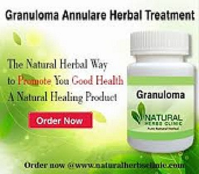 Natural Remedies for Granuloma Annulare Herbal Treatment